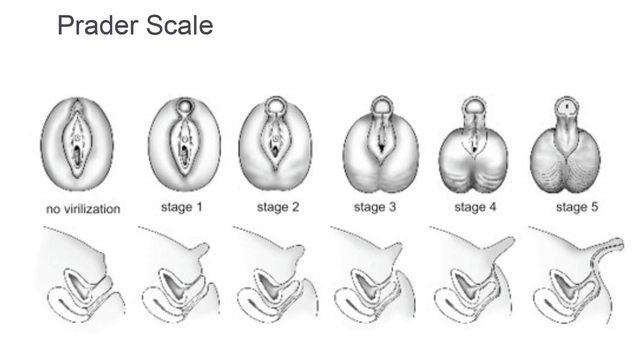 Cazul extraordinar al fetițelor cărora le crește un penis la pubertate